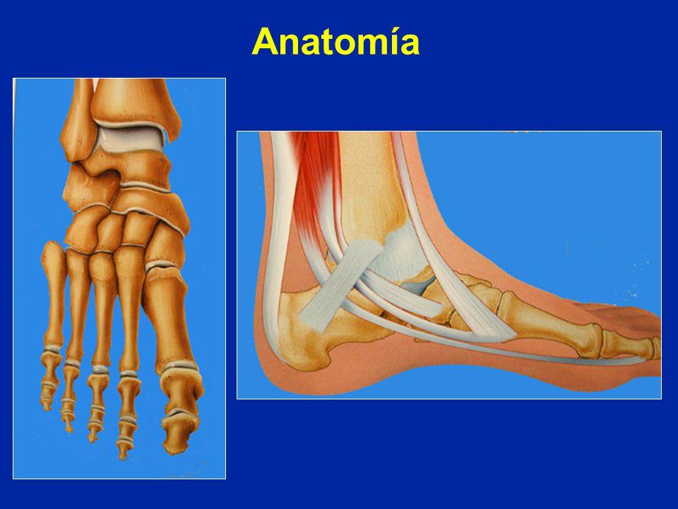 Generalidades Anatomía Examen del pie Pie plano Pie cavo - ppt video ...