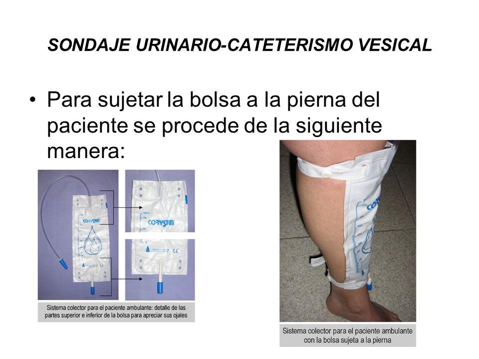 SONDAJE URINARIO-CATETERISMO VESICAL