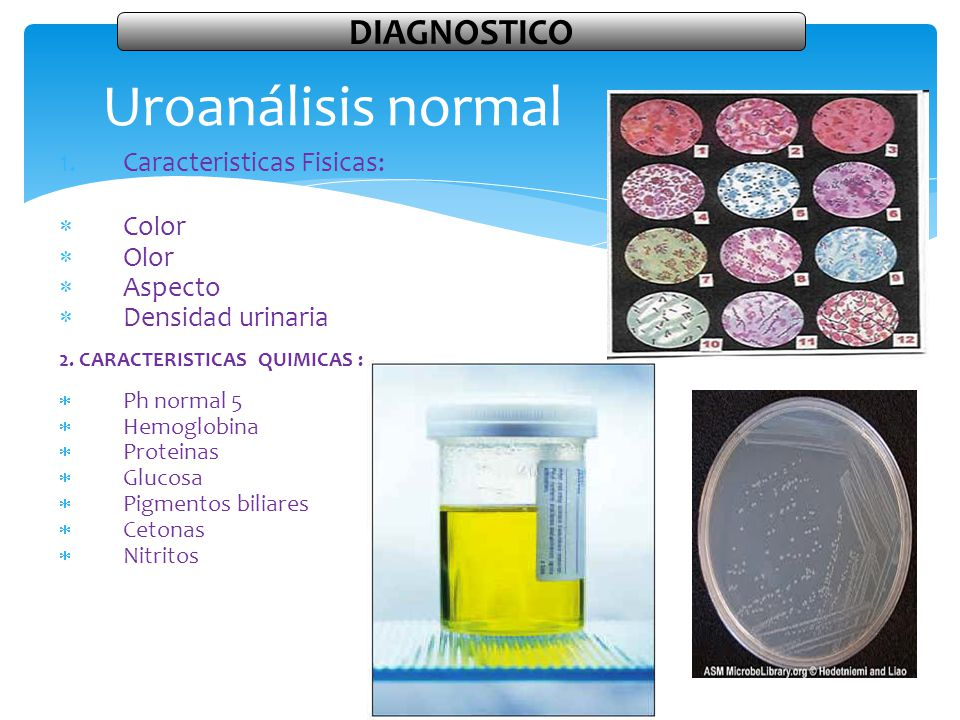 Uroanálisis normal DIAGNOSTICO Caracteristicas Fisicas: Color Olor