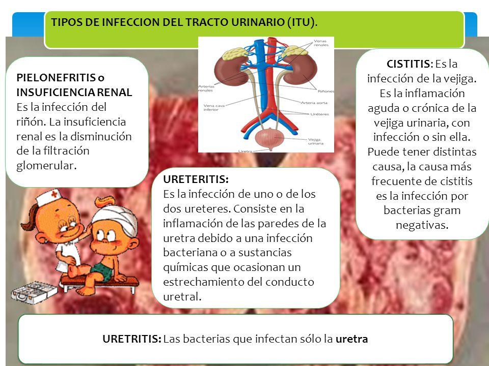URETRITIS: Las bacterias que infectan sólo la uretra
