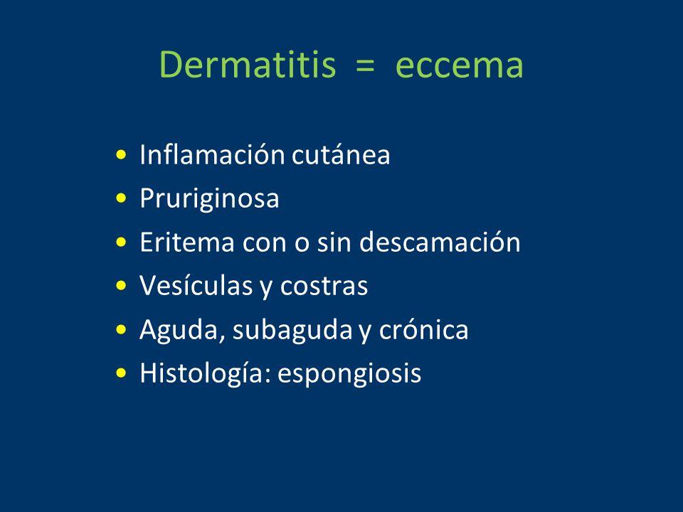 Dermatitis = eccema Inflamación cutánea Pruriginosa