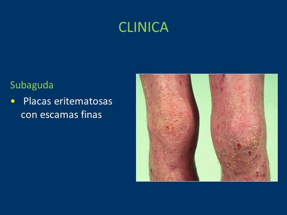 CLINICA Subaguda Placas eritematosas con escamas finas