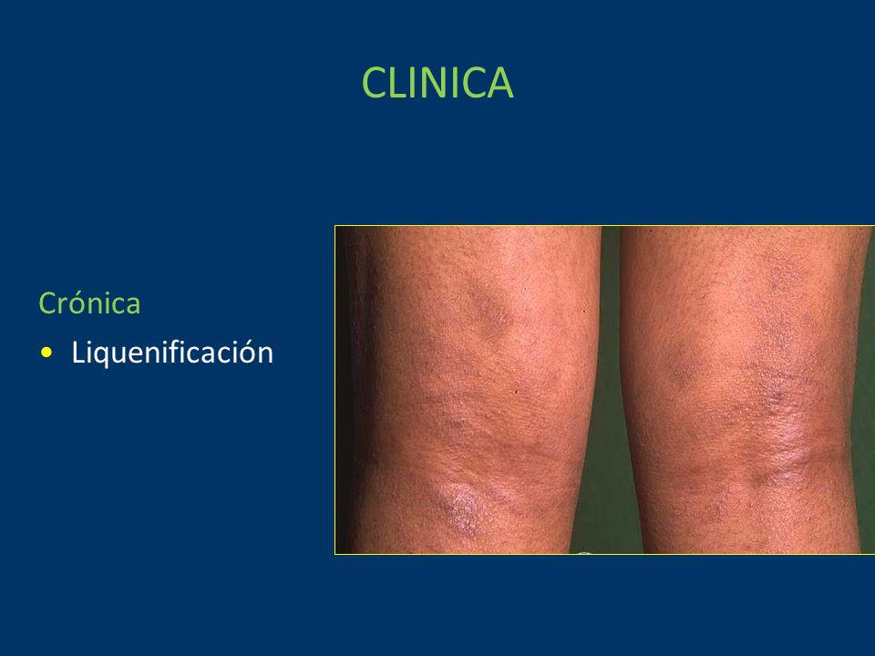 CLINICA Crónica Liquenificación
