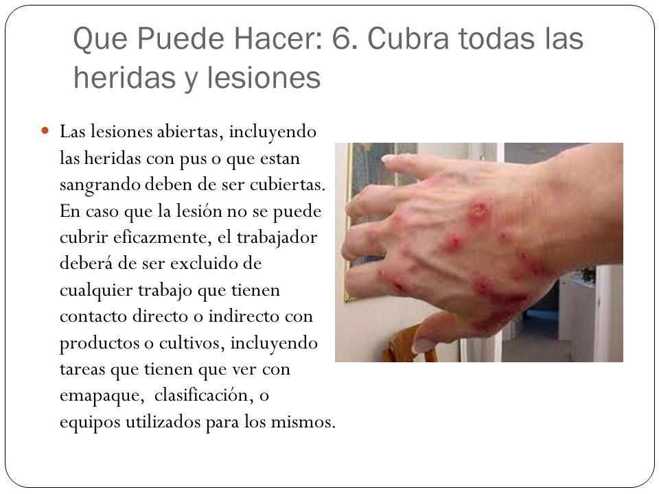 Que Puede Hacer: 6. Cubra todas las heridas y lesiones