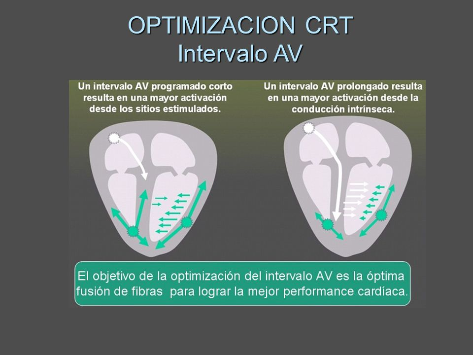 OPTIMIZACION CRT Intervalo AV