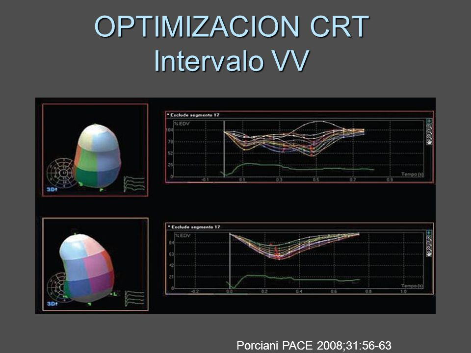 OPTIMIZACION CRT Intervalo VV