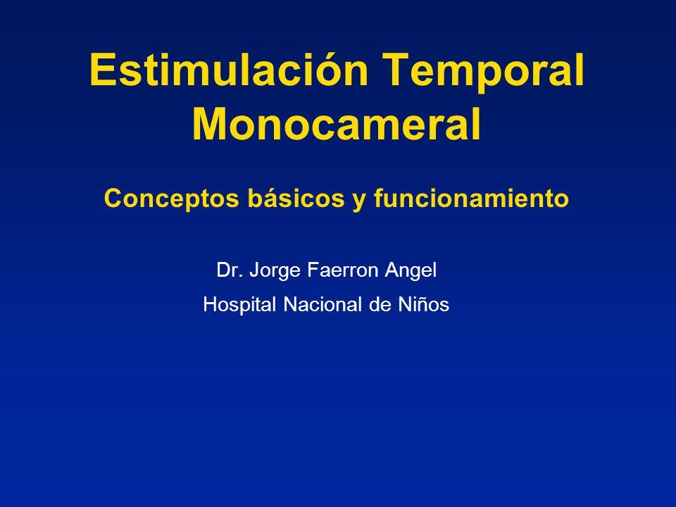 Estimulación Temporal Monocameral Conceptos básicos y funcionamiento