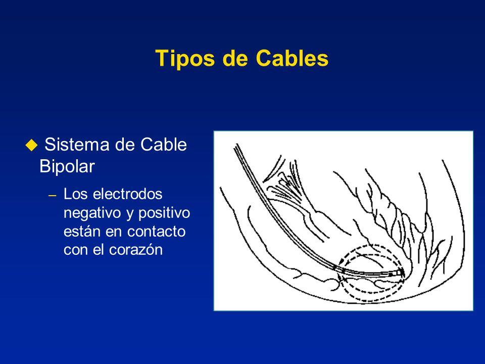 Tipos de Cables Sistema de Cable Bipolar