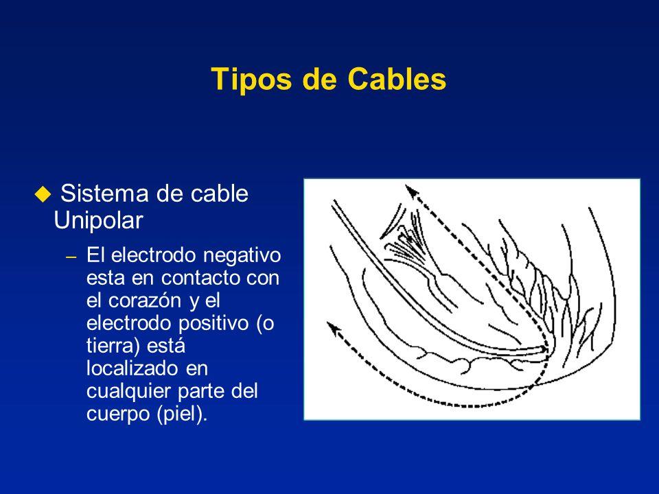 Tipos de Cables Sistema de cable Unipolar