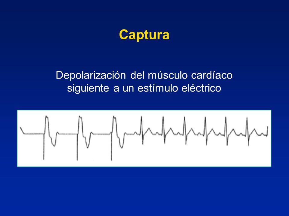 Depolarización del músculo cardíaco siguiente a un estímulo eléctrico