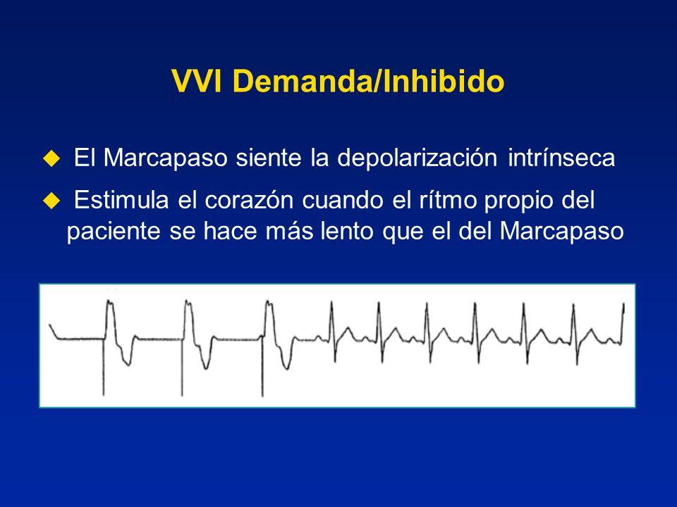 VVI Demanda/Inhibido El Marcapaso siente la depolarización intrínseca