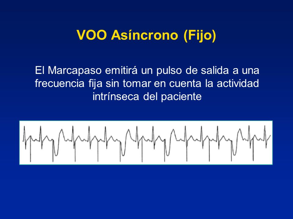 VOO Asíncrono (Fijo) El Marcapaso emitirá un pulso de salida a una frecuencia fija sin tomar en cuenta la actividad intrínseca del paciente.