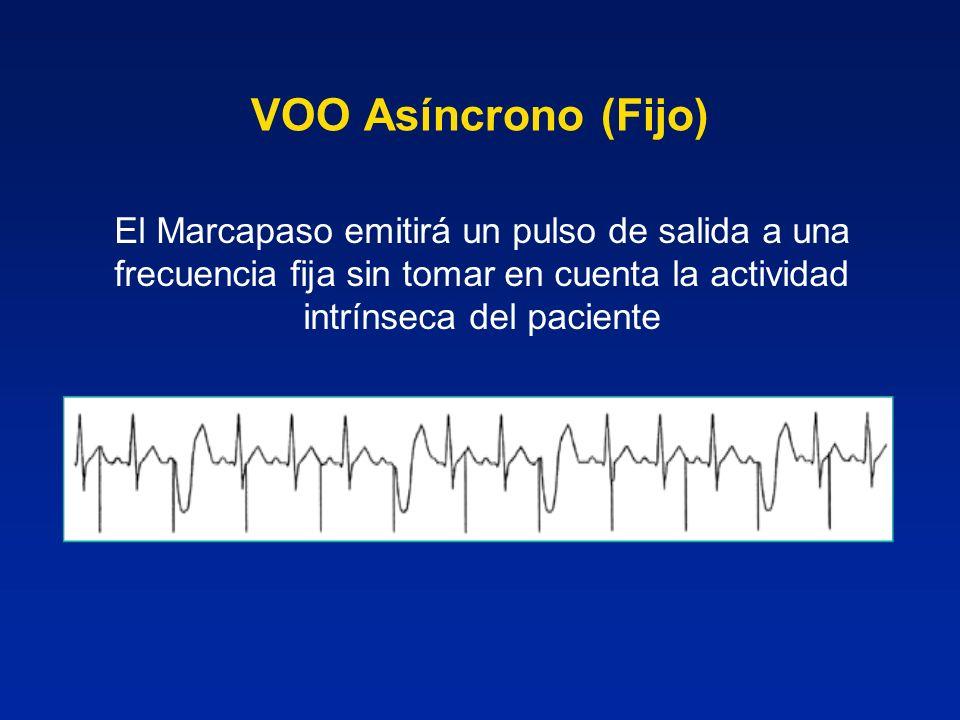 VOO Asíncrono (Fijo)El Marcapaso emitirá un pulso de salida a una frecuencia fija sin tomar en cuenta la actividad intrínseca del paciente.
