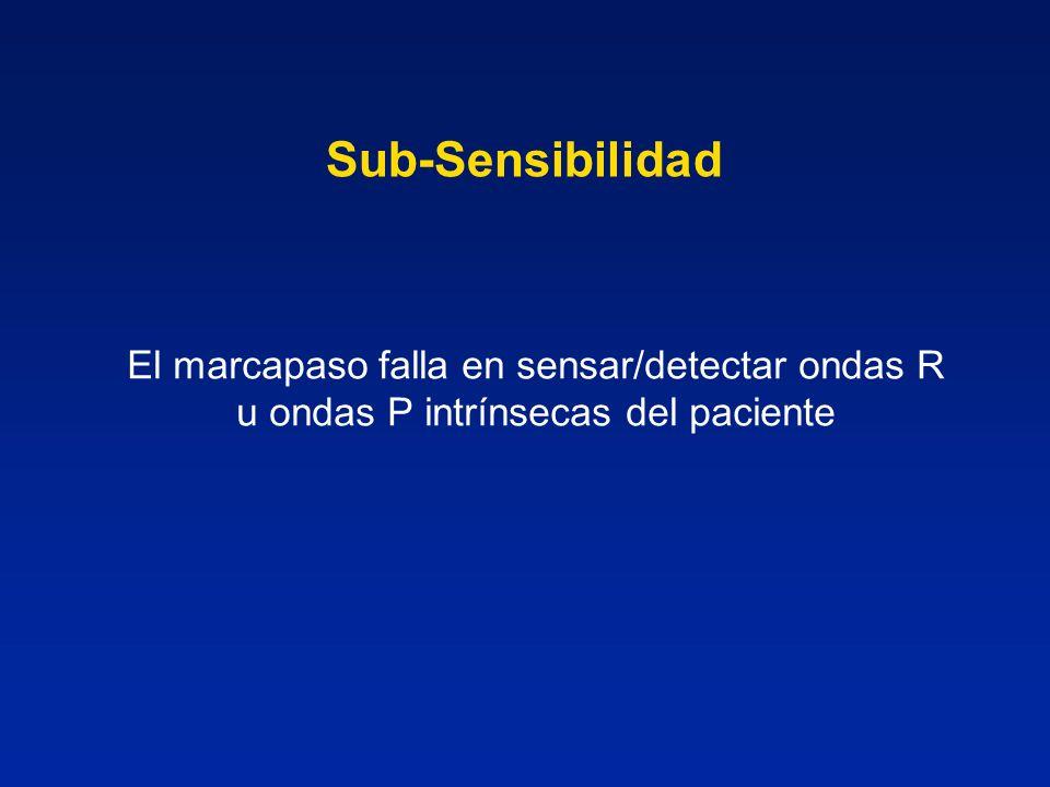 Sub-Sensibilidad El marcapaso falla en sensar/detectar ondas R u ondas P intrínsecas del paciente