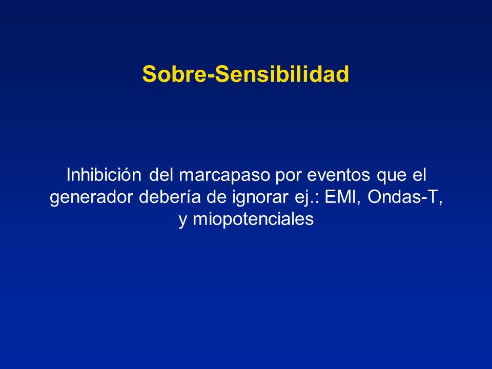 Sobre-SensibilidadInhibición del marcapaso por eventos que el generador debería de ignorar ej.: EMI, Ondas-T, y miopotenciales.
