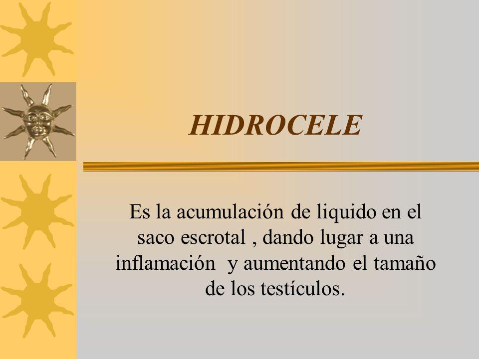 HIDROCELE Es la acumulación de liquido en el saco escrotal , dando lugar a una inflamación y aumentando el tamaño de los testículos.