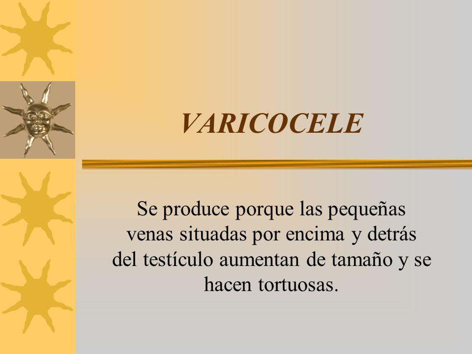 VARICOCELE Se produce porque las pequeñas venas situadas por encima y detrás del testículo aumentan de tamaño y se hacen tortuosas.