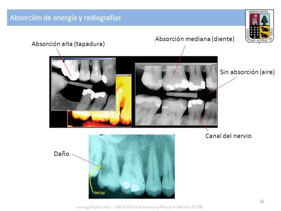 Absorción de energía y radiografías