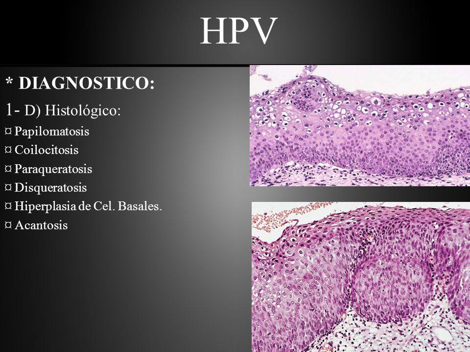 HPV * DIAGNOSTICO: 1- D) Histológico: ¤ Papilomatosis ¤ Coilocitosis