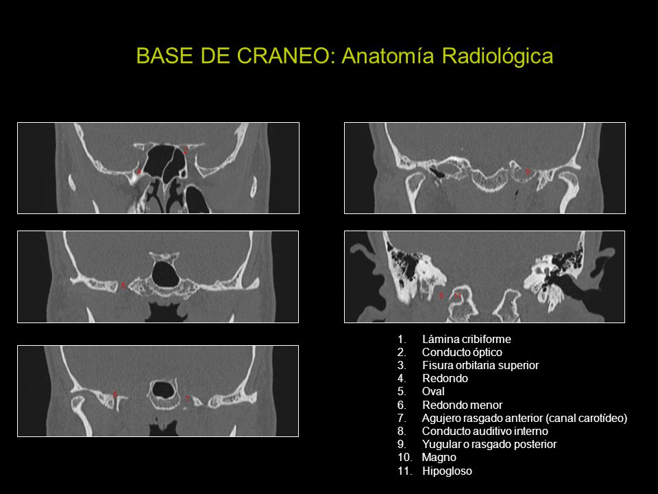 Atractivo Anatomía Radiología Hueso Temporal Imagen - Imágenes de ...