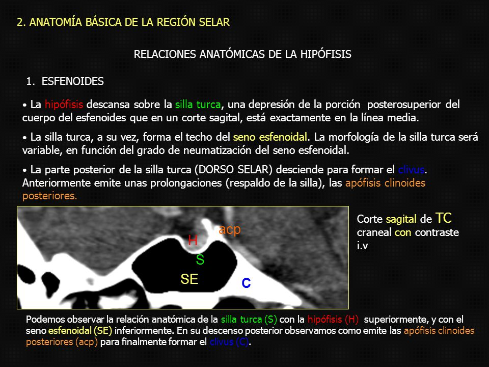 Dorable Anatomía Silla Turca Viñeta - Anatomía de Las Imágenesdel ...