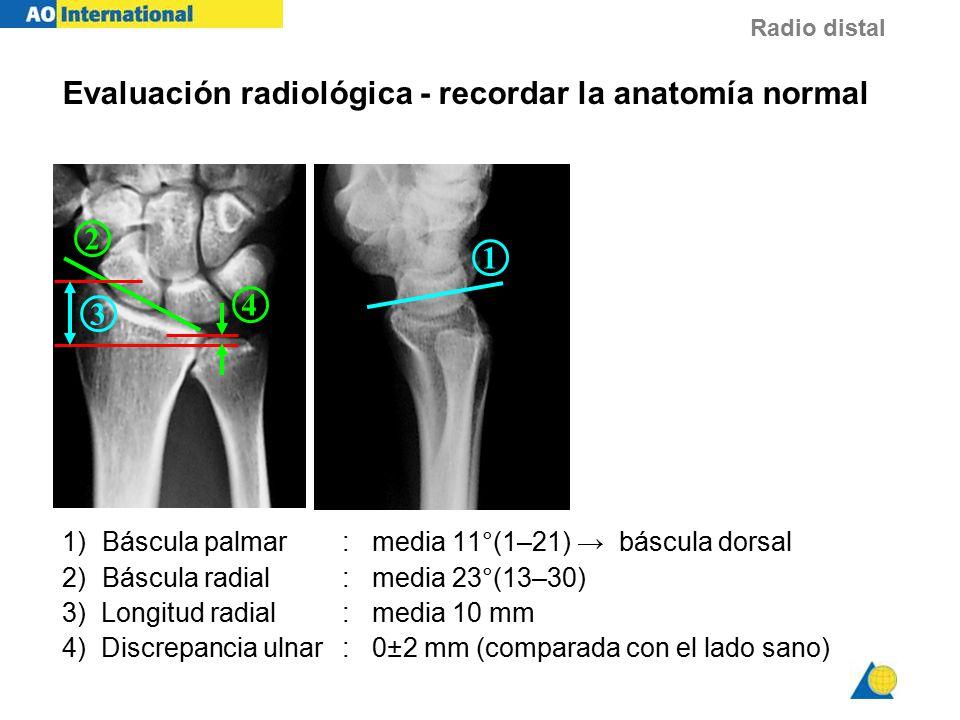 Único Bontrager Posicionamiento Radiográfico Y La Anatomía ...
