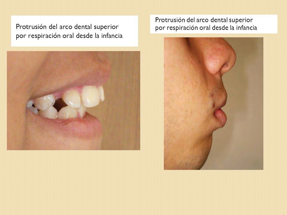 Protrusión del arco dental superior