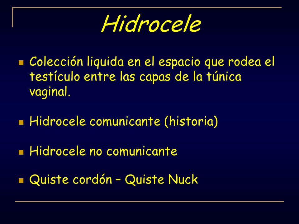 Hidrocele Colección liquida en el espacio que rodea el testículo entre las capas de la túnica vaginal.