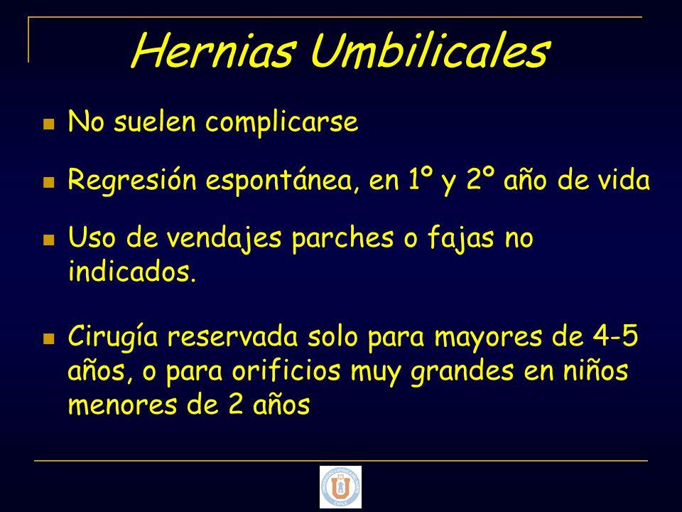 Hernias Umbilicales No suelen complicarse