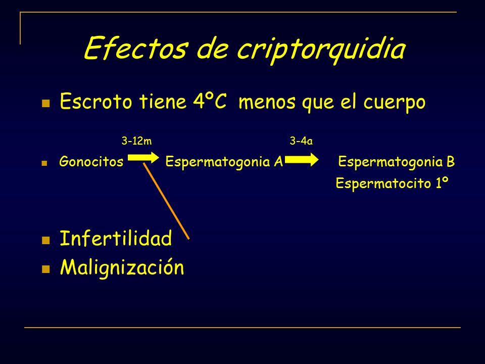 Efectos de criptorquidia