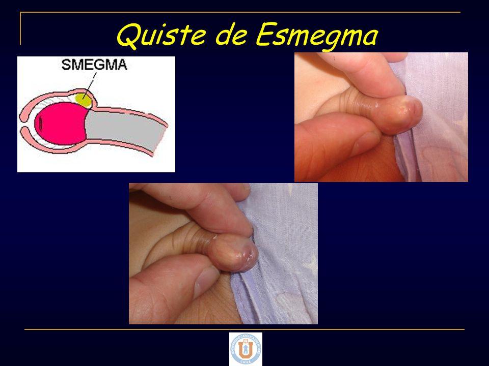 Quiste de Esmegma