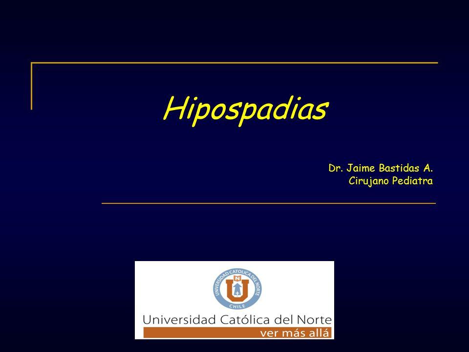 Hipospadias Dr. Jaime Bastidas A. Cirujano Pediatra