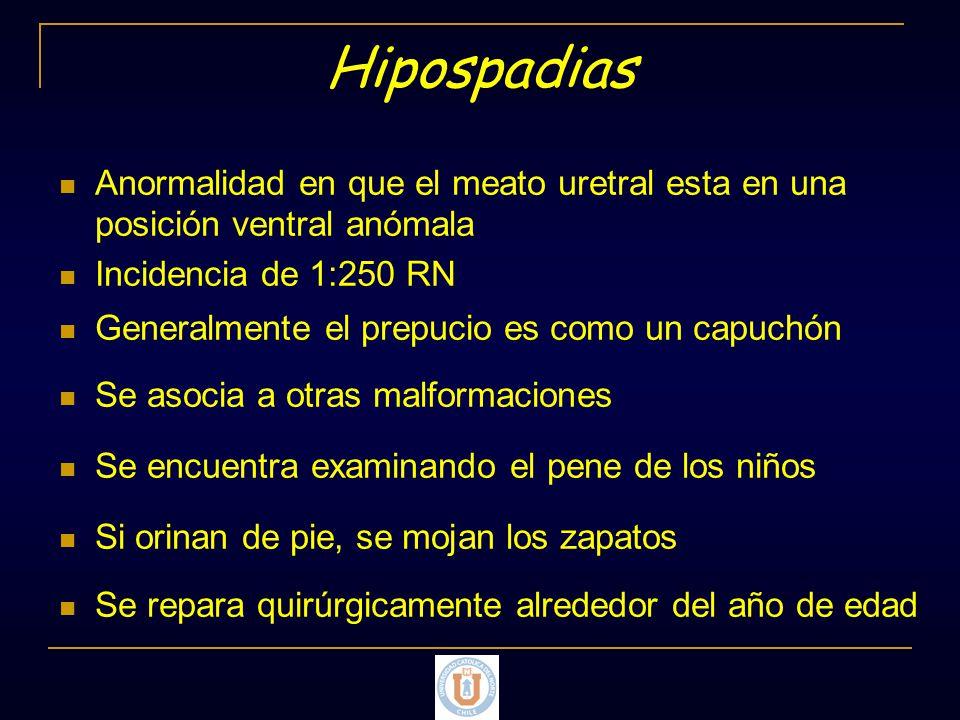 Hipospadias Anormalidad en que el meato uretral esta en una posición ventral anómala. Incidencia de 1:250 RN.