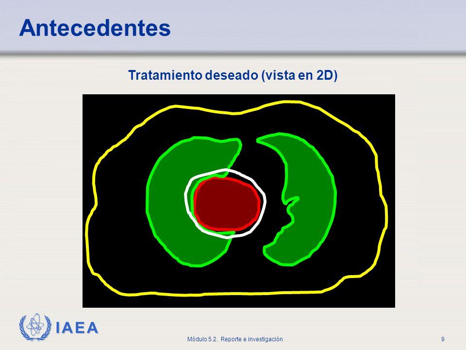 Antecedentes Tratamiento deseado (vista en 2D)