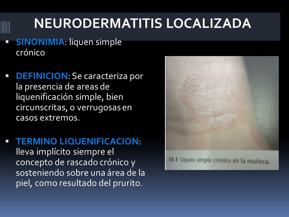 NEURODERMATITIS LOCALIZADA