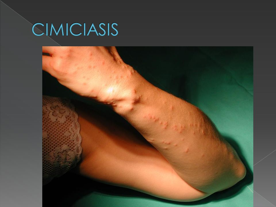 CIMICIASIS