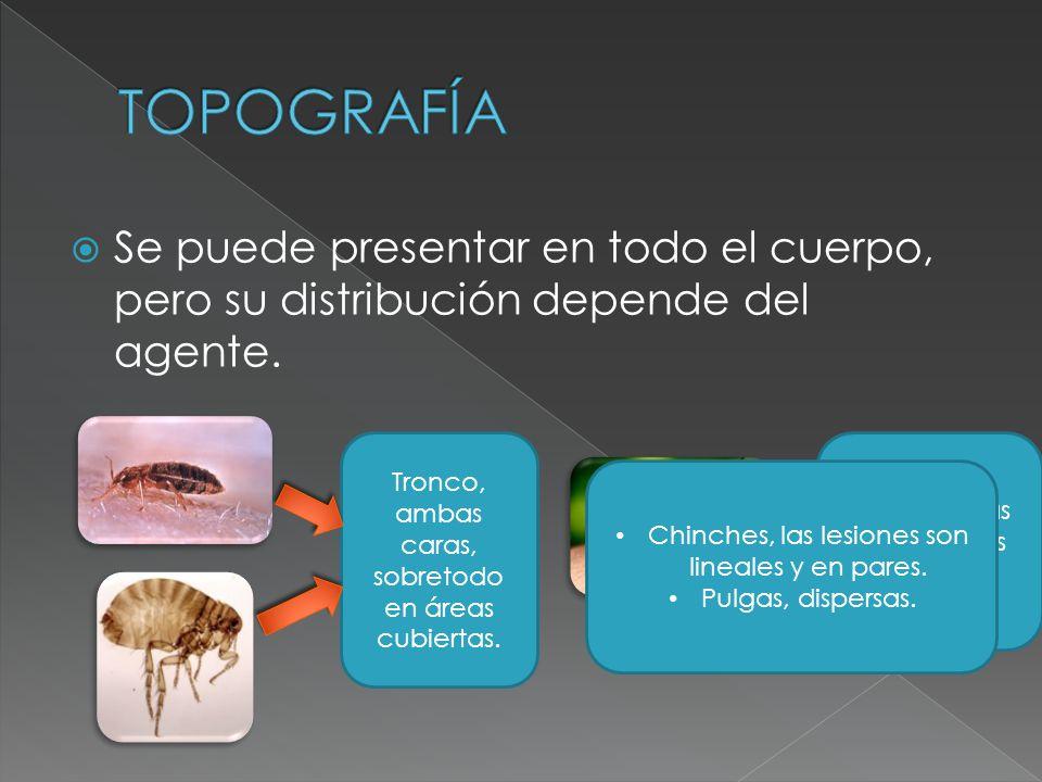 TOPOGRAFÍA Se puede presentar en todo el cuerpo, pero su distribución depende del agente. Tronco, ambas caras, sobretodo en áreas cubiertas.