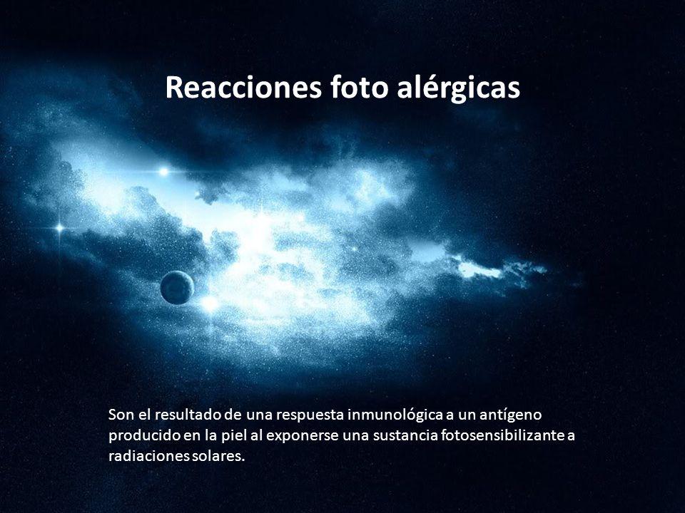 Reacciones foto alérgicas