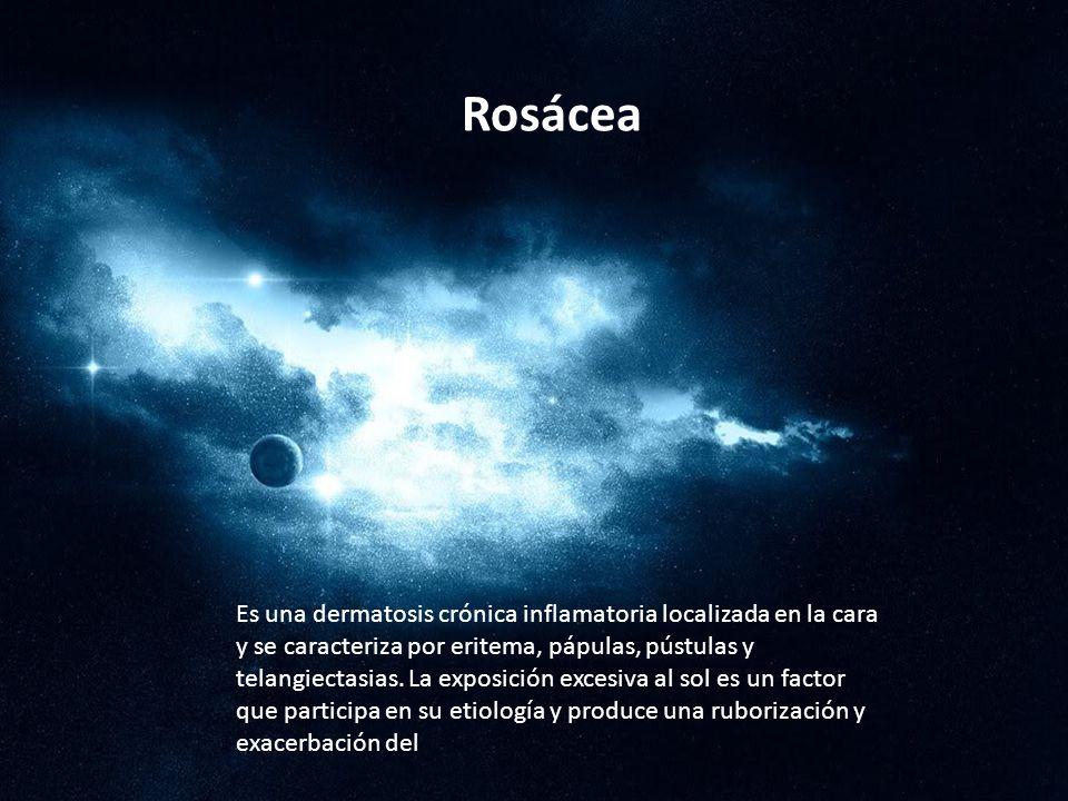Rosácea