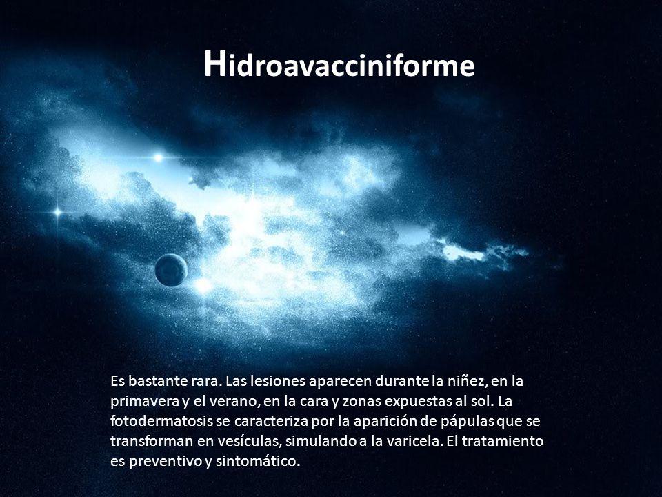 Hidroavacciniforme