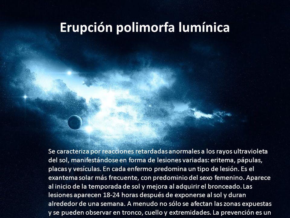 Erupción polimorfa lumínica