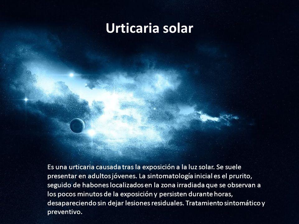 Urticaria solar