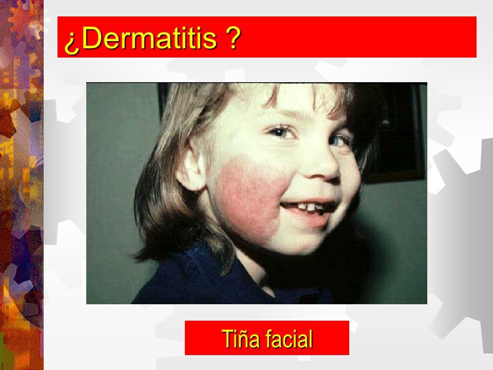¿Dermatitis Tiña facial