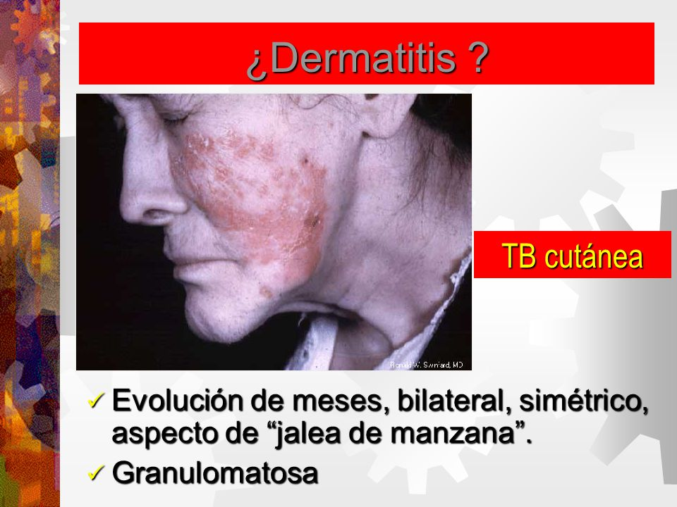 ¿Dermatitis TB cutánea