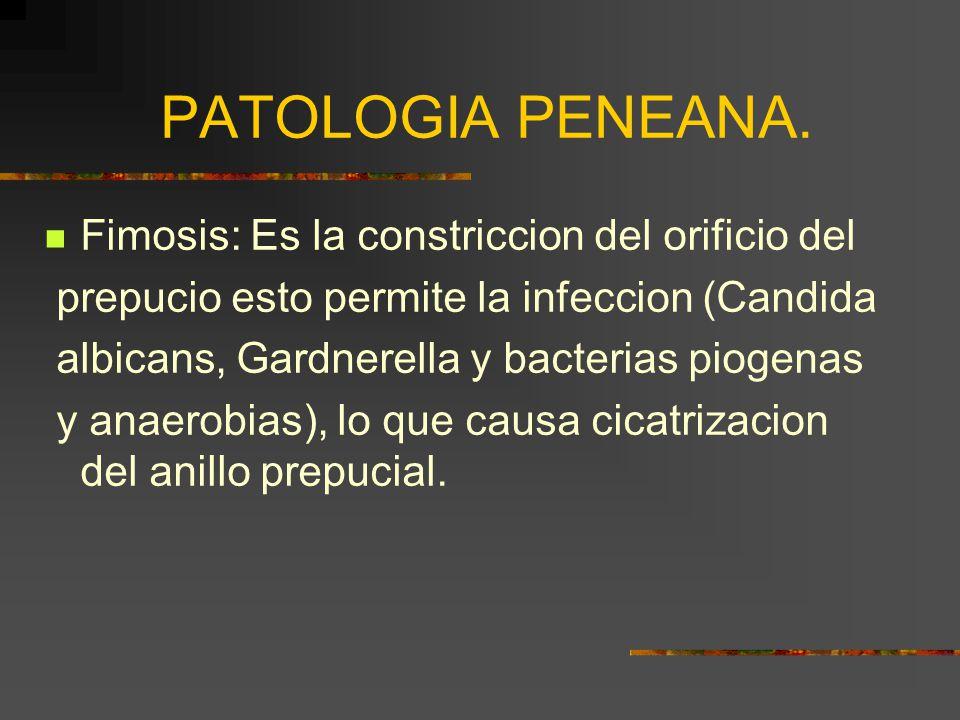 PATOLOGIA PENEANA. Fimosis: Es la constriccion del orificio del