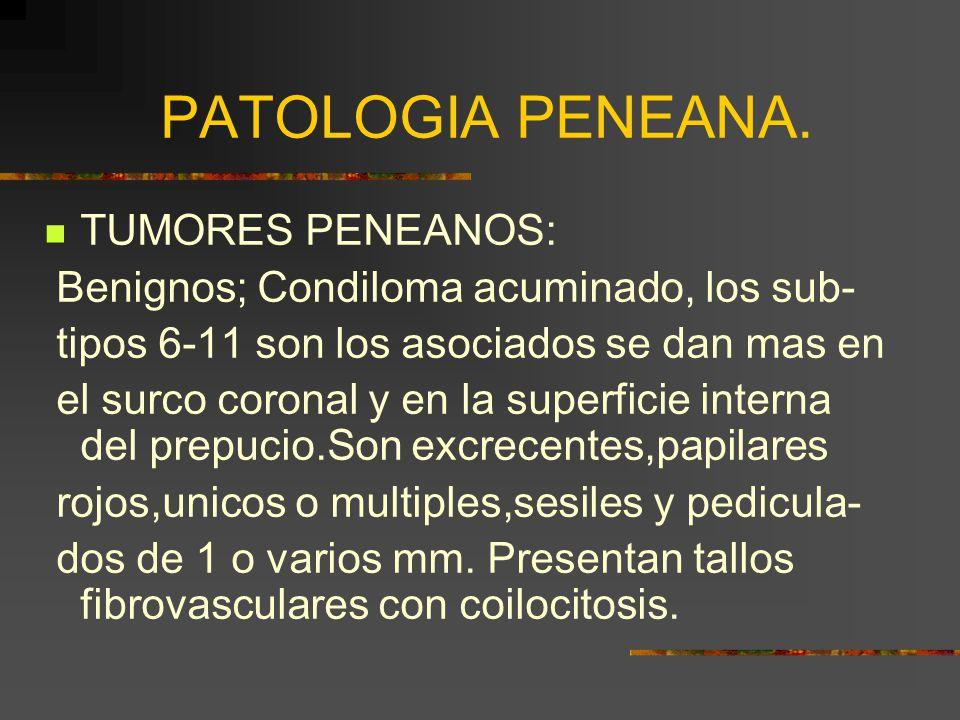 PATOLOGIA PENEANA. TUMORES PENEANOS: