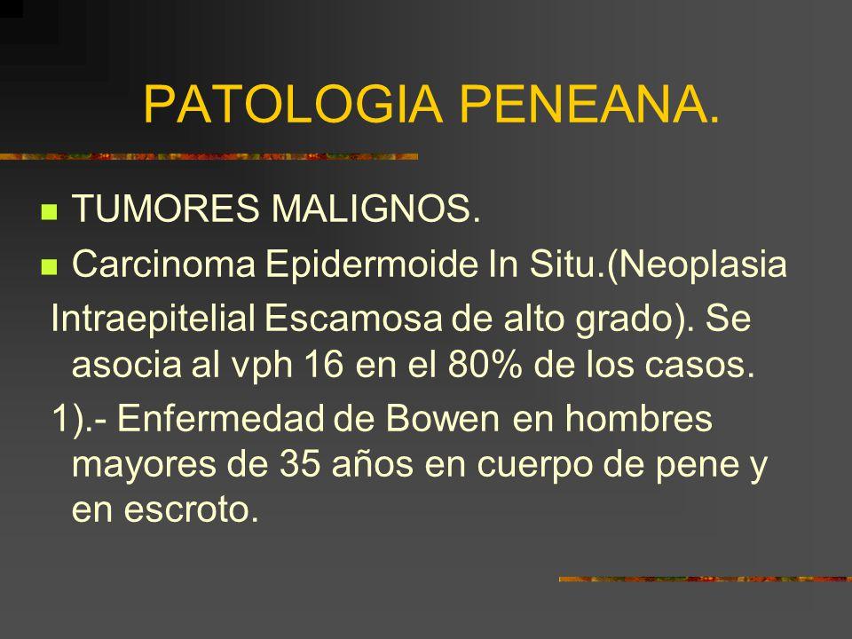 PATOLOGIA PENEANA. TUMORES MALIGNOS.