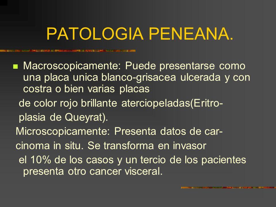 PATOLOGIA PENEANA. Macroscopicamente: Puede presentarse como una placa unica blanco-grisacea ulcerada y con costra o bien varias placas.