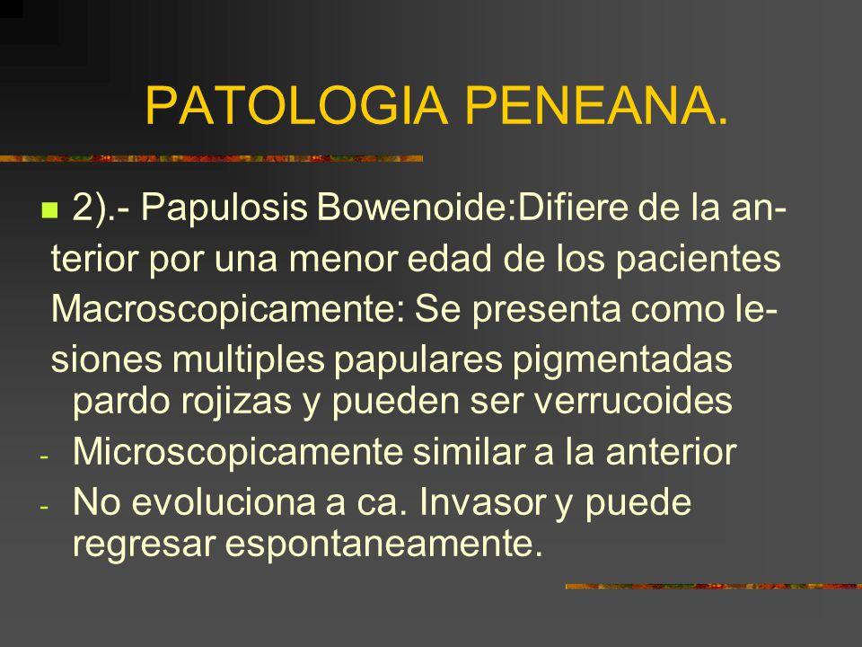 PATOLOGIA PENEANA. 2).- Papulosis Bowenoide:Difiere de la an-