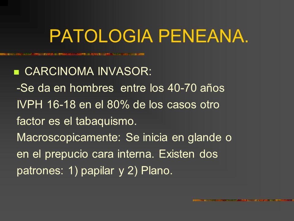 PATOLOGIA PENEANA. CARCINOMA INVASOR: